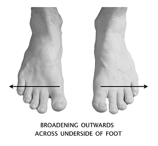 Inner Toe Shoe Description